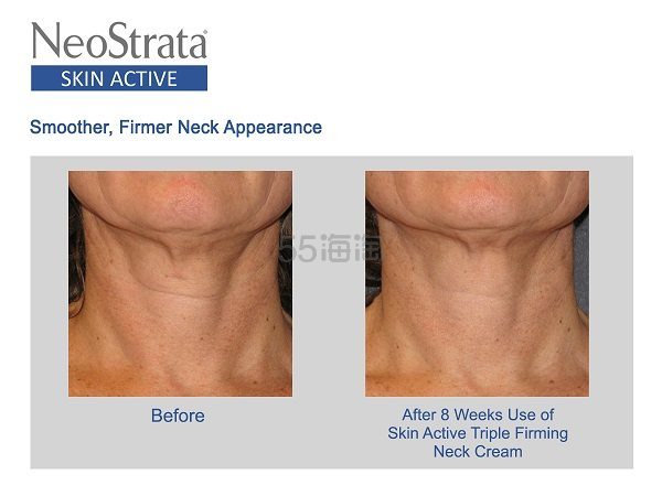 【已开奖】【5姐送福利】Neostrata 芯丝翠 护肤界学霸品牌