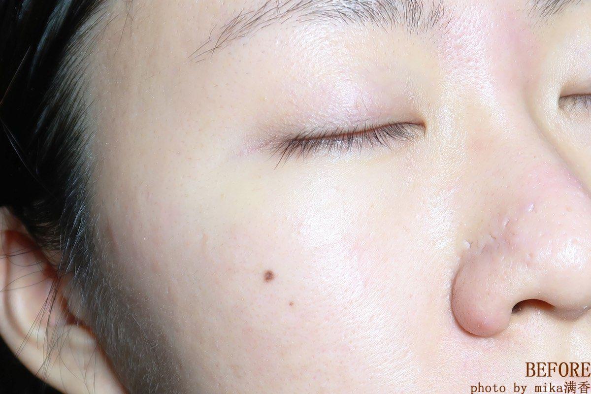 🉑毛孔粗大快用这个化妆水 我这个油痘肌在护肤的时候最需要的