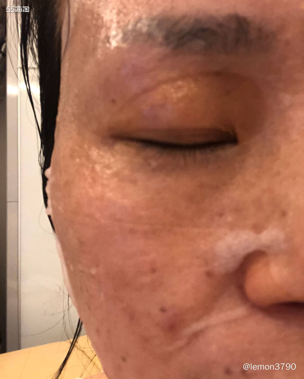 面膜打卡第一天 产品:简爱一生医用冷敷贴 产地:广州 售价: