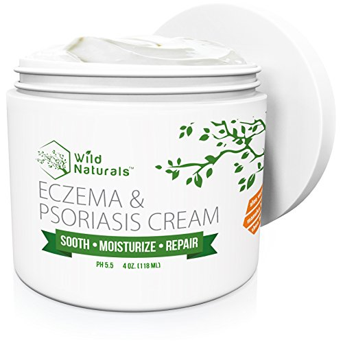 Wild Naturals Eczema & Psoriasis Cream, For Dry, Irritated Skin, Itch Relief, Dermatitis, Rosacea, and Shingles. Promotes Healing and Calms Redness, Rash and Itching Fast